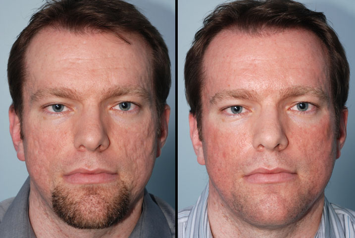 Acne Scars Before And After Laser Treatment