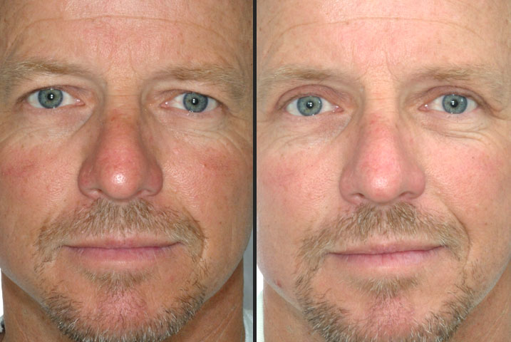 Eyelid surgery utah cost,breast augmentation after 60,plastic surgery lips  gone bad,breast enlarge video - Review