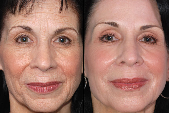 Think, Facial resurfacing before and after